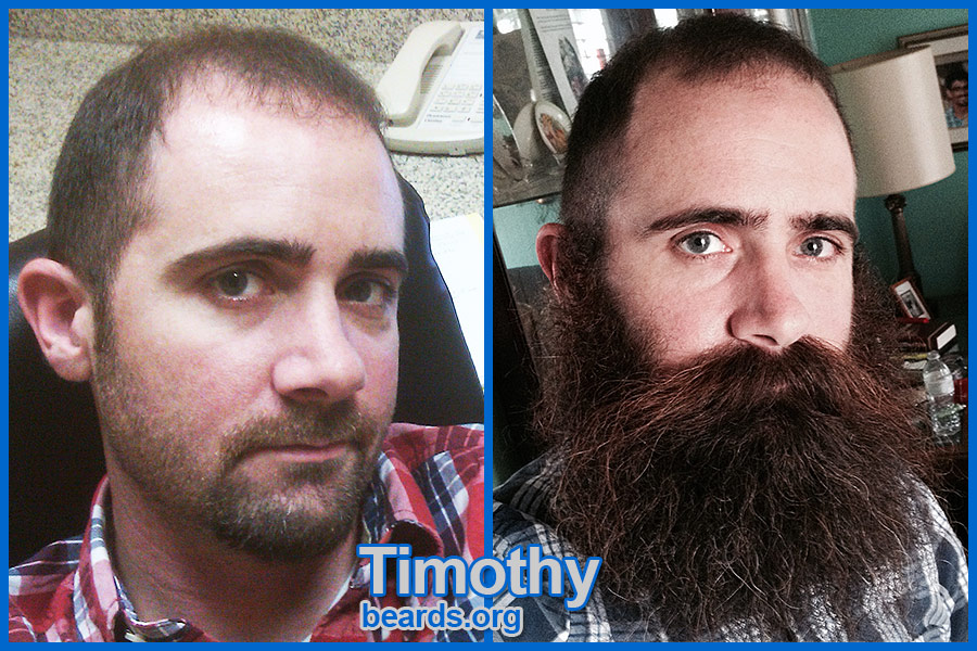 Timothy, before and after the beard