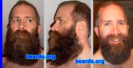 Andy's beard!