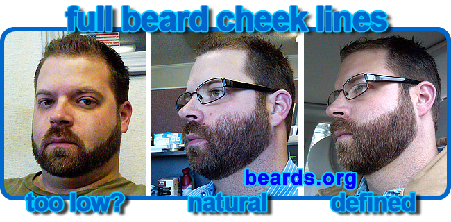 full beard cheek lines