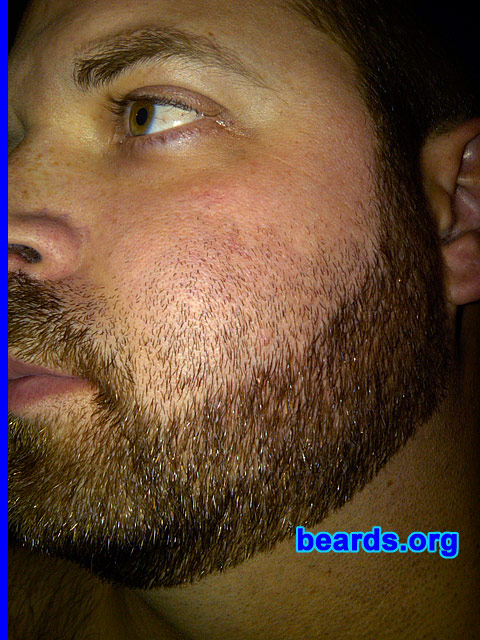 Repairing A Bad Neck Line Or Cheek Line For Your Full Beard All