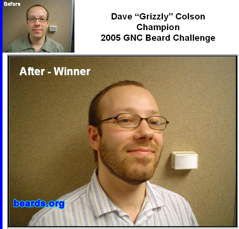 The CHAMPION of the 2005 GNC Beard Challenge