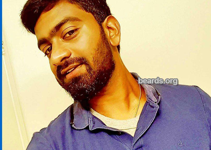 Bharadwaj: today's beard, 2016/12/24