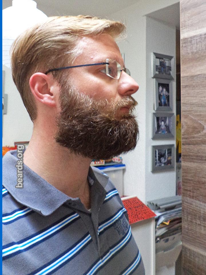William, beard photo 5